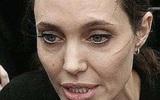 """""""Угасающая красота"""": у Анджелины Джоли случился паралич лица"""