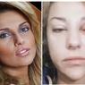 Екатерина Архарова впервые рассказала, как ее избивал муж ВИДЕО