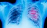 Назван признак рака легких, который часто игнорируют