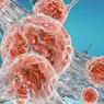 Названа диета, помогающая лечить рак