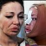Саша Project будет делать десятую пластическую операцию на лице