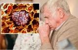 Хронический бронхит связали с опухолью легких