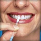 Эксперты назвали простой и доступный способ отбеливания зубов
