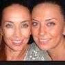 Сестра Жанны Фриске сделала пластическую операцию на носу