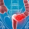 Онкологи назвали три основных признака рака кишечника
