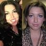 Ирина Дубцова полностью изменилась с зубными имплантами и уколами ботокса