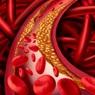 Исследователи выявили факторы образа жизни, повышающие риск сердечных заболеваний