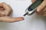 Врачи рассказали, как выявить высокий сахар в крови без глюкометра