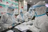 Опубликованы снимки пораженных коронавирусом легких