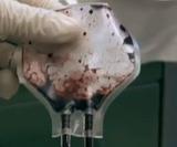Свежая кровь омолодила пожилых мышей, заявили ученые