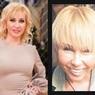 Что произошло с лицами Ксении Стриж и Татьяны Ивановой после пластических операций