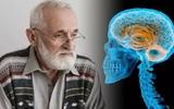 Медики предупредили о признаках болезни Паркинсона, скрытых в неправильной осанке