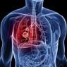 Названы шесть основных симптомов рака легких
