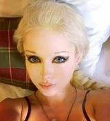 """""""Одесская Барби"""" шокировала размером талии после удаления ребер"""