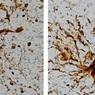 """Ученые обнаружили в мозге оживающие после смерти """"гены-зомби"""""""
