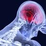 Ученые открыли, как выглядит грусть в мозге человека