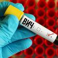 ВИЧ: Что россияне думают о вирусе и о чем не знают