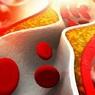 Медики рассказали, как можно быстро снизить уровень холестерина в крови