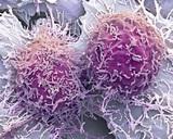 Медики рассказали о самых первых симптомах рака печени