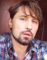 """""""Это болезнь?"""": Дима Билан вынужден был побриться наголо"""