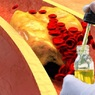 Ученые назвали травяное масло, которое снизит холестерин