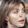 """""""Живу с разрезанным лицом"""": Алиса Аршавина рассказала о своем состоянии"""