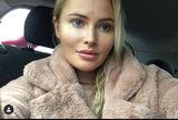 Дана Борисова сделала подтяжку лица и сняла процесс на камеру