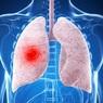 Названы три главных способа защититься от рака легких