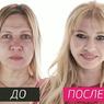 """Звезда 80-х раскрыла секрет операций в программе """"На 10 лет моложе!"""""""