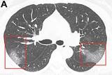 У бессимптомно переболевших COVID-19 нашли поражения легких