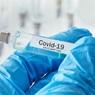 Песков назвал ревакцинацию неизбежной, но насчет бесплатных тестов на антитела разговоров нет