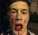 После нападения на Жукова возбуждено уголовное дело