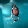 Первый пациент с искусственным сердцем прожил 65 дней