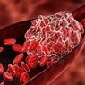Британские врачи назвали семь главных признаков появления тромбов