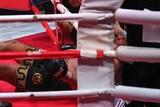 Британский боксер Ярд после победы Сергея Ковалева был госпитализирован