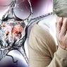 Специалисты назвали основные продукты, уменьшающие риск развития деменции