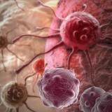 Ученые: В 66% случаев онкозаболевания не обусловлены образом жизни