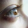 Голубоглазые лучше кареглазых справляются с болью