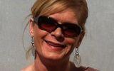 Американка подхватила на Карибах плотоядного паразита и теперь теряет скальп