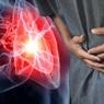 Медики перечислили пять симптомов инфаркта, появляющихся за месяц до приступа