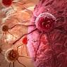 Врачи назвали продукты, провоцирующие рак желудка