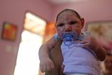 ВОЗ объявила тревогу: вирус Зика угрожает детям Земли (ФОТО)