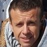 Андрей Губин страдает от странной болезни: что происходит с его лицом и шеей?