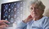 Врачи назвали три ключевых отличия деменции от обычных возрастных проблем с памятью