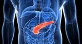 Медики рассказали, кто входит в группу риска развития рака поджелудочный железы
